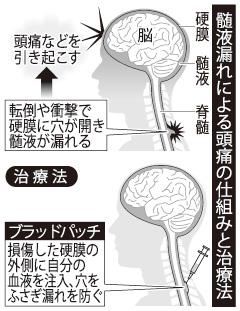 髄液漏れによる頭痛の仕組みと治療法